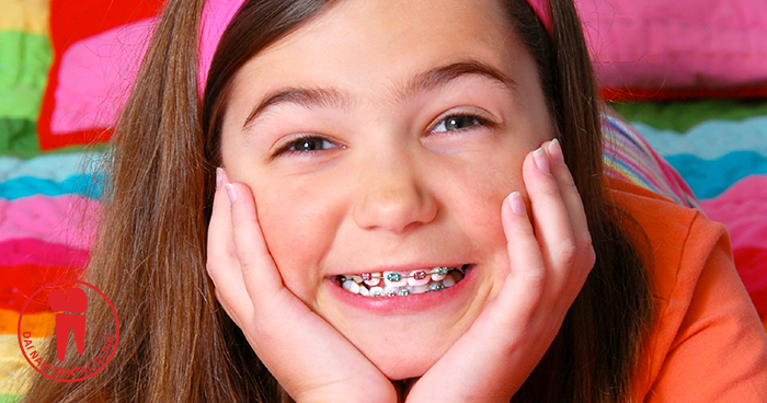 he ideal age for braces is between 12 and 15 years old