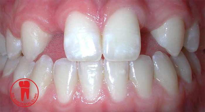 Messy Teeth