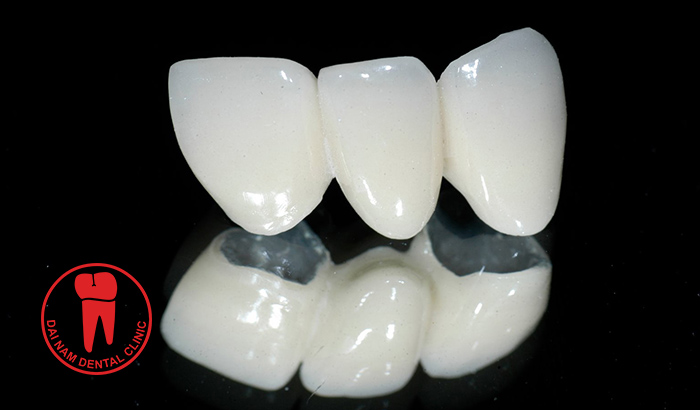 Titanium porcelain crowns