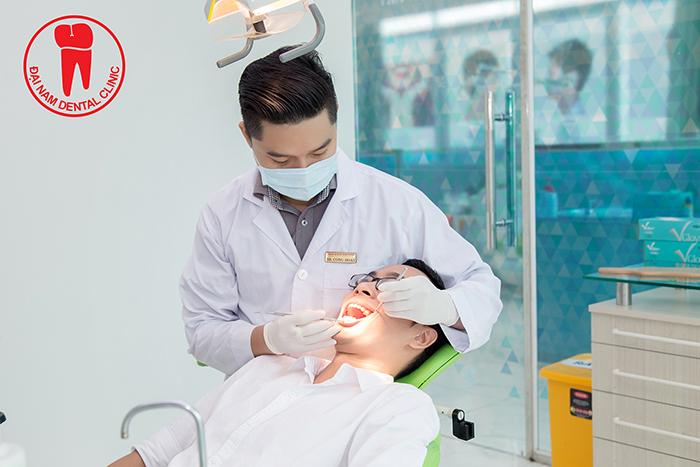 Fillings at Dai Nam dentristy
