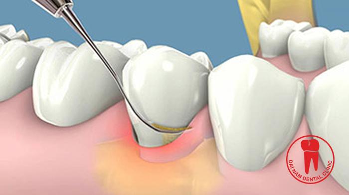 gingivitis-periodontal-1