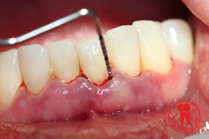 The prolonged cement causes tooth stain and disfiguring your smile