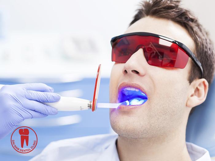 Teeth whitening methods in the dental office has grown in popularity