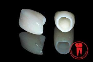 Porcelain Emax