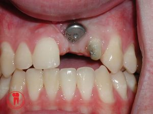 Complications due to improper implant placement