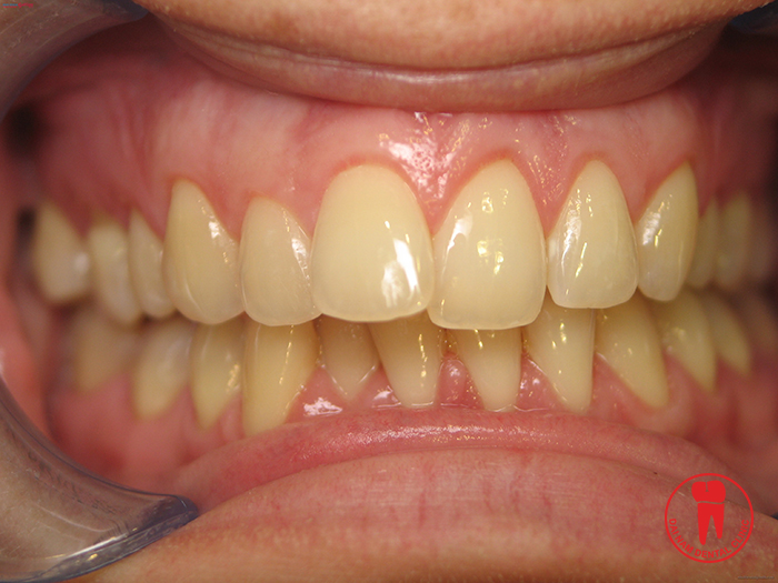 Teeth Whitening applies to all cases of tooth staining by food contaminated color