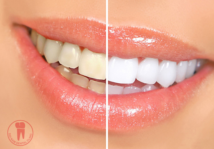 Before and After making Teeth whitening
