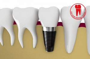 the-overview-of-the-implant-3