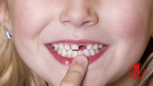 Children should not do implant