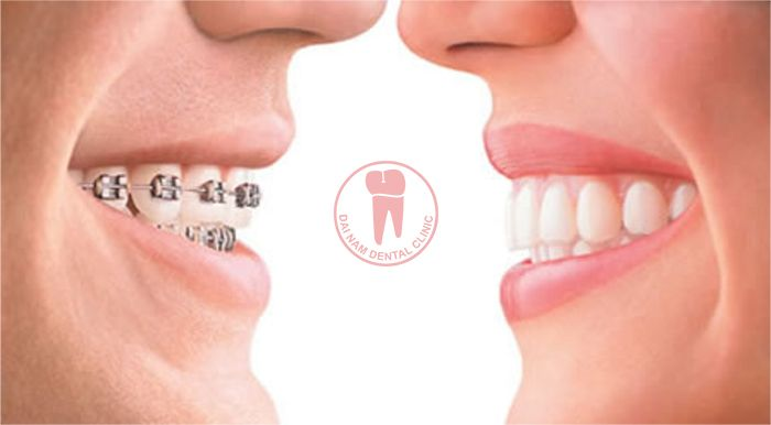 How long do you need to wear braces?