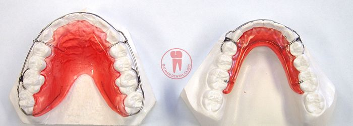 the retainer will continue to accompany you in a relatively long time period