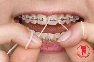With braces, your teeth will be more difficult to clean