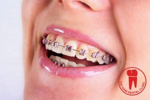 If you want to maximize the benefits of the braces, you should perform orthodontic really assure the highest results