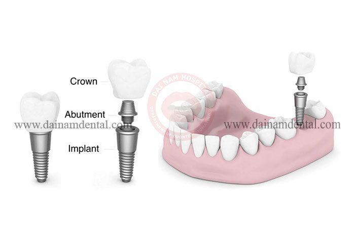 structure of the implant