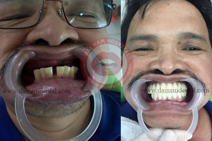 Restoration of teeth on the implant