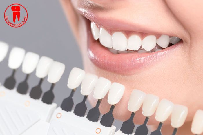 WHAT ARE PORCELAIN CROWNS?